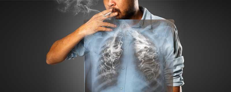 smoker-lungs